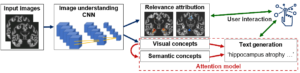 Read more about the article AAIC talk: Deep learning models for generating diagnostic explanations