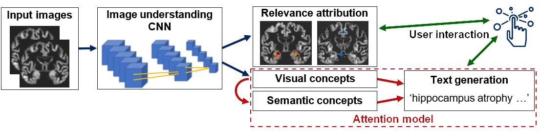 You are currently viewing AAIC talk: Deep learning models for generating diagnostic explanations